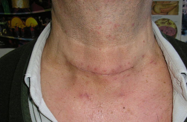 Operacion de tiroides cicatriz