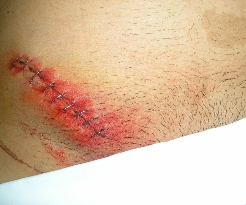 De inguinal de que tiempo hernia recuperacion tiene operacion una